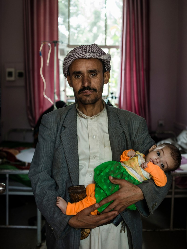 Ali Qasim al Ajil holds his malnourished six month old daughter, Kawthar, on May 4, 2018 at Sabaeen Hospital in Sana'a, Yemen. Kawthar contracted cholera soon after she was born and has been malnourished ever since. Their area, Bani Hushaish, has few jobs and few food supplies like flour and oil, and no one can afford what is available.