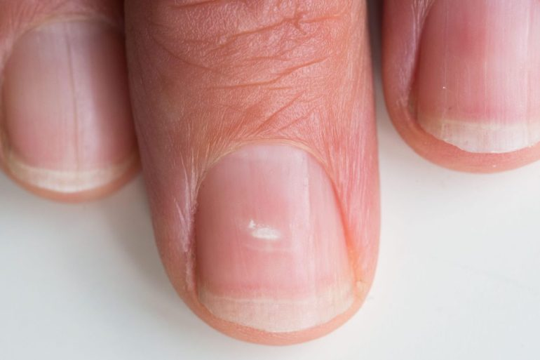 white marks on nails cure