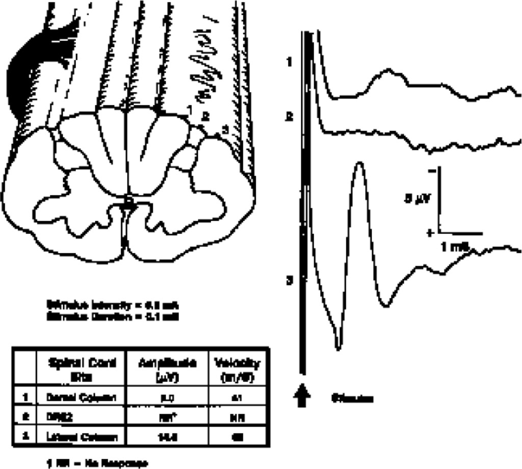 Spinal Cord Mapping With Evoked Responses For Accurate