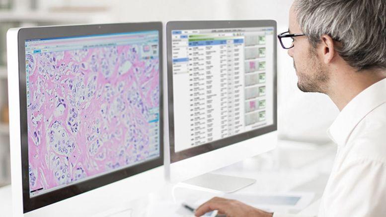 Digital Pathology and AI Innovation to Improve Cancer Care