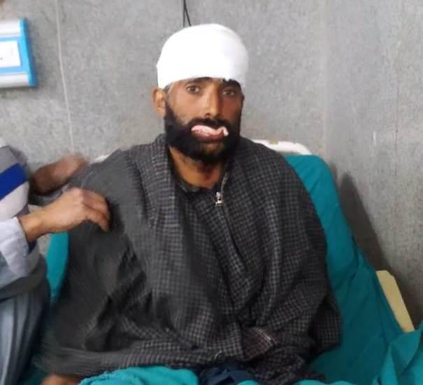 Jal Shakhti Dept employee injured in bear attack in Narvaw Baramulla