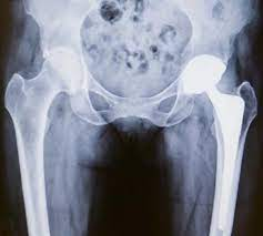 Lifestyle aspects to sustain joint replacement surgeries!