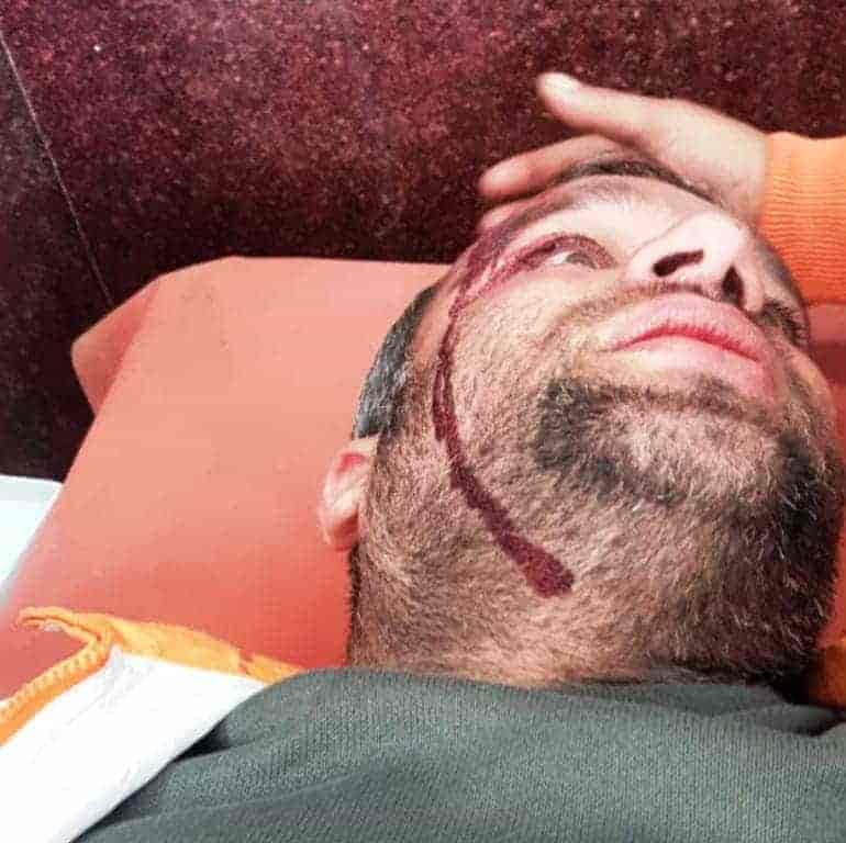 journalist hit by pellets,
