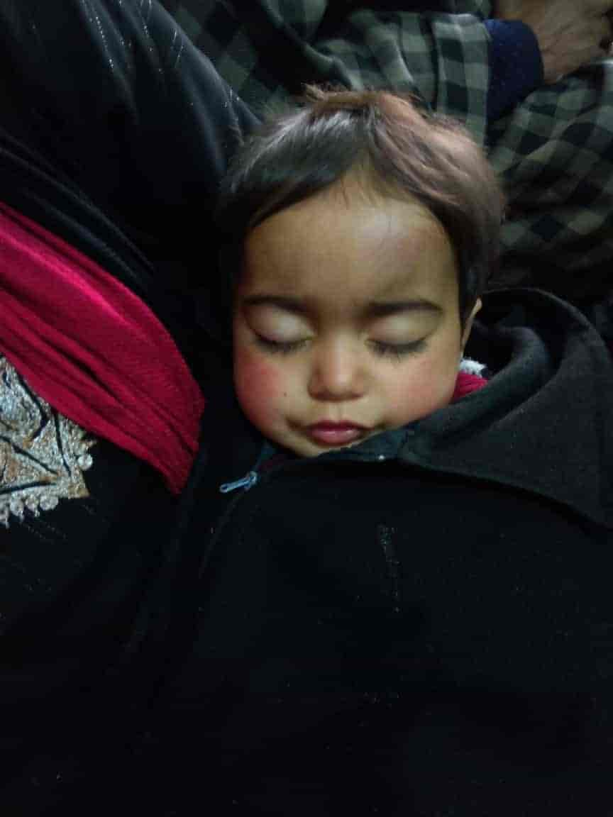 shrc seeks report,18 month old baby injured in shopian, hiba nisar, kashmir, shopian