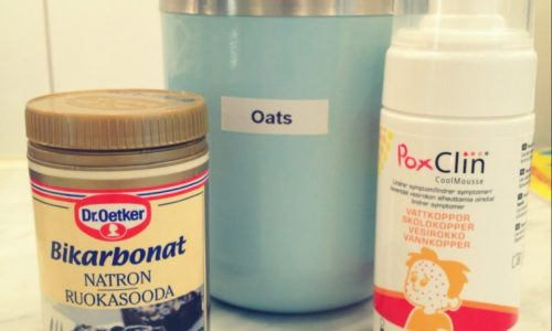 The Kat Edit tips to ease chicken pox