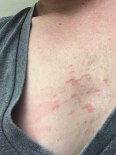 Jacob Gets Keto Rash and Searches Reddit for Answers | The