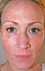 Co2 Laser Resurfacing In Indiana Laser And Skin Surgery