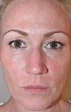 DOT laser resurfacing photos