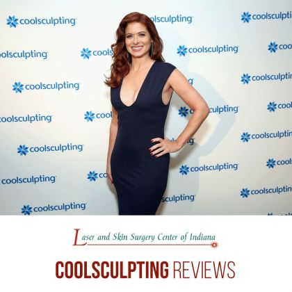 CoolSculpting Reviews