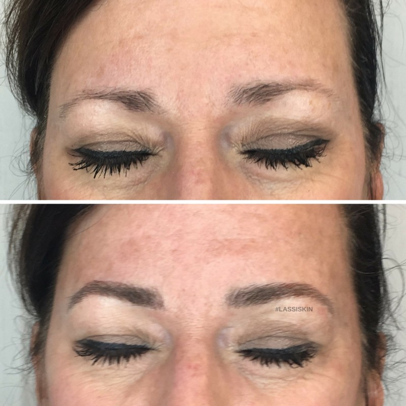 Microblading Laser And Skin Surgery Center Of Indiana Laser And