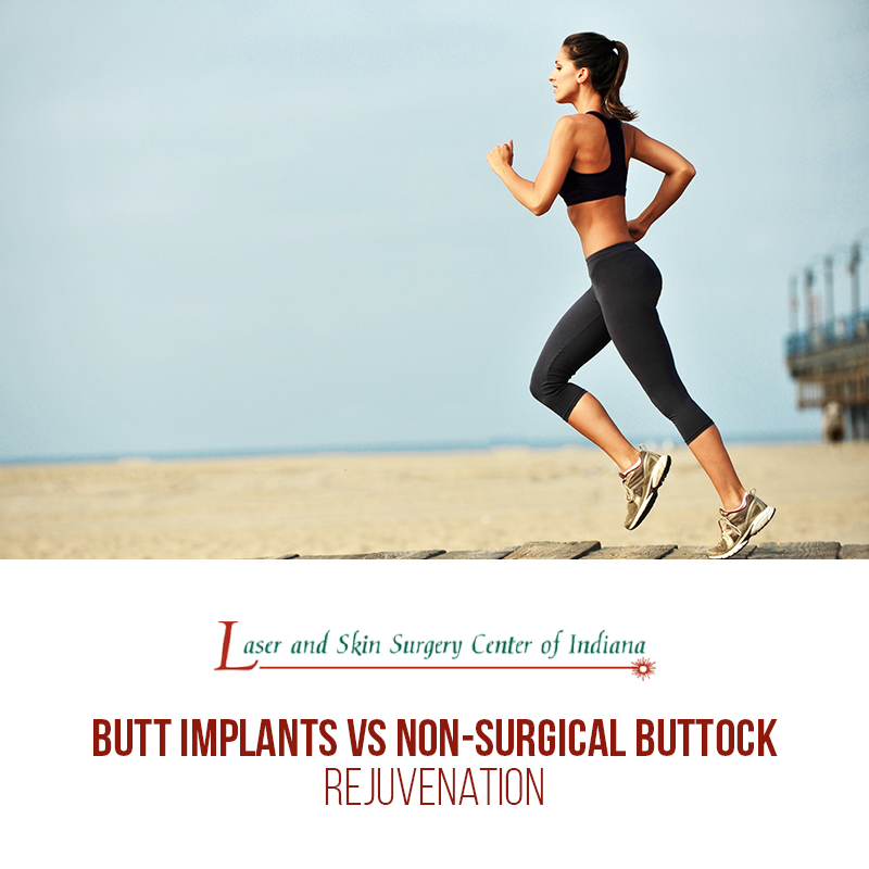 butt implants vs buttock rejuvenation