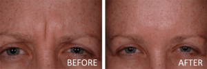 before and after botox indianapolis