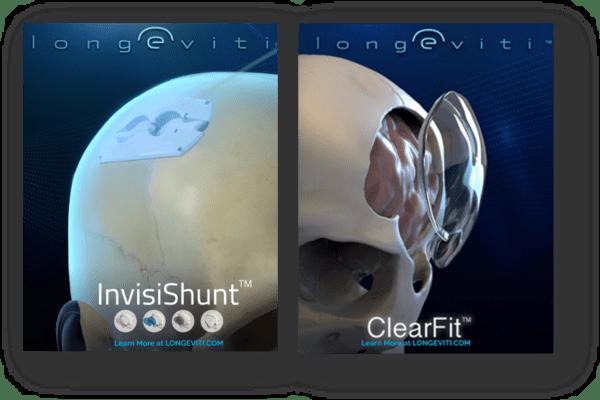 longeviti skull design