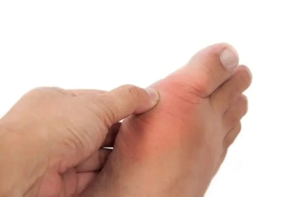gout is painful