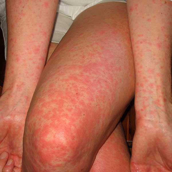 scarlet Adult fever in