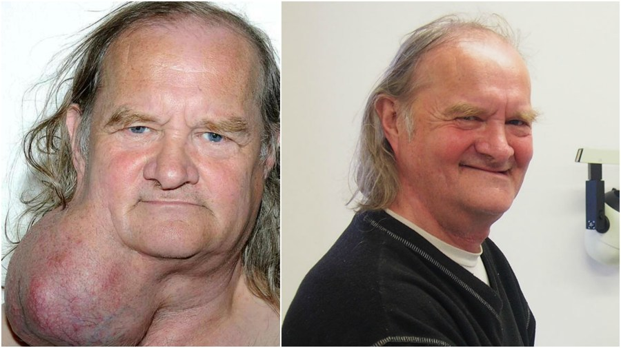 Ian Crow before and after the surgery