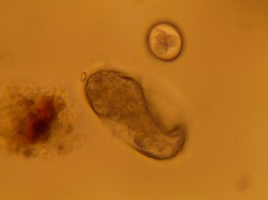 Strongyle (below) and coccidia (above) egg found on fecal flotation