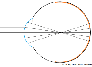 Ray Diagram of Focal Point In Front of The Retina