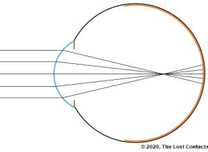 Ray Diagram of Moderate Myopia