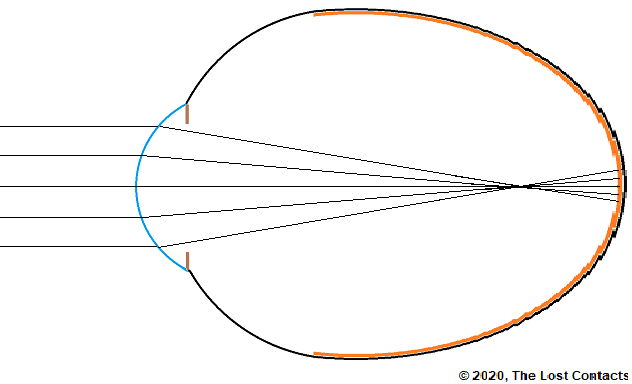 Ray Diagram of Eye Blank Longest with Rays