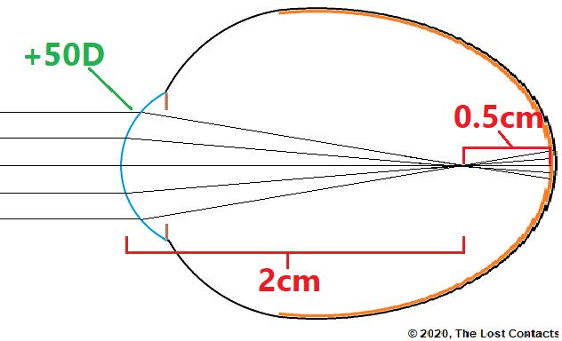 Ray Diagram of Myopia example