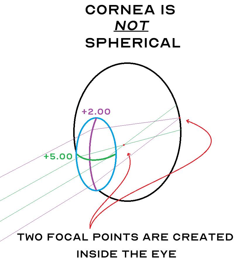 spherocylindrical cornea