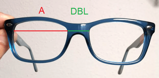 Examples of A and DBL measurement