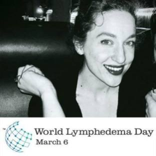 alexa-lymphie-life-world-lymphedema-day