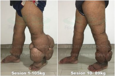 A patient with bilateral primary lymphedema. The left leg is Stage III elephantiasis; the right is Stage II. Pictured here is the progress following ten treatment sessions. [source]