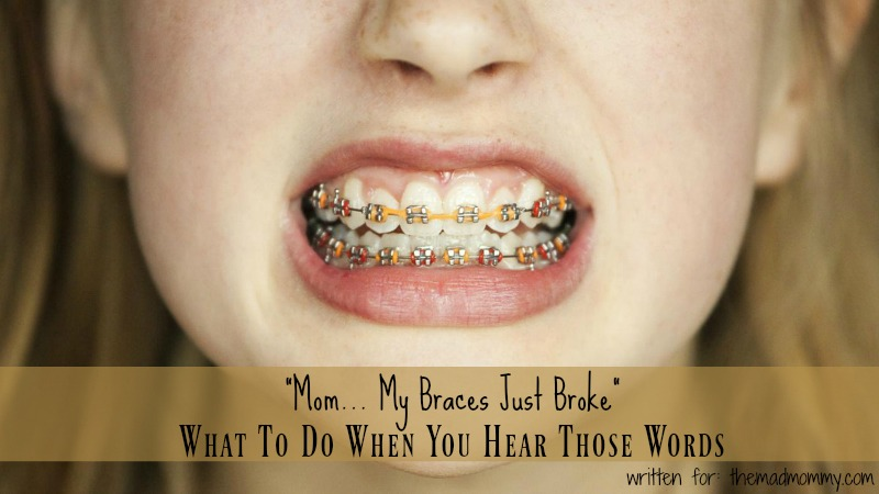 Braces are the easiest way to fix these problems and give your child a pleasant and confident smile.