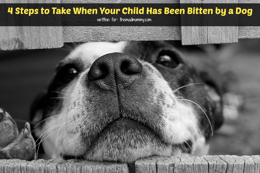 Here are a few steps that parents must take immediately after their child has been bitten by a dog.