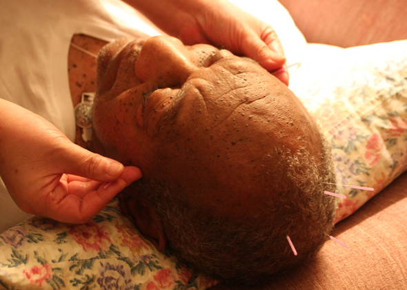 """Trying to grow hair,"" said Bill Cosby while receiving acupuncture on his sofa at home, Photo by Mengwei Chen"