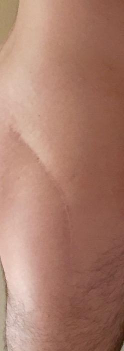 healed scar on hip