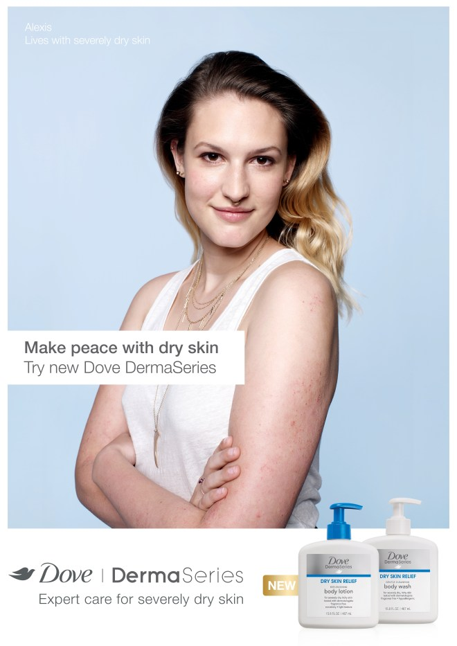 Alexis from Dove DermaSeries campaign