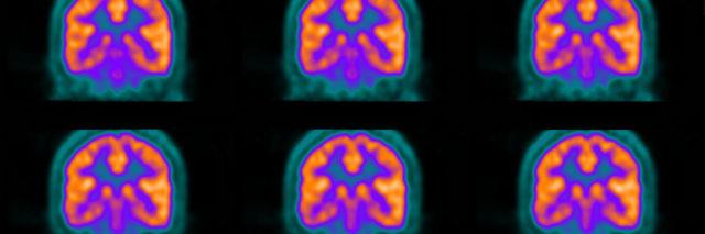 PET scans of a brain