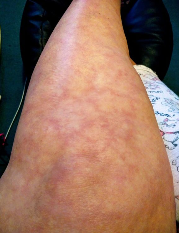 livedo reticularis rash on a woman's leg