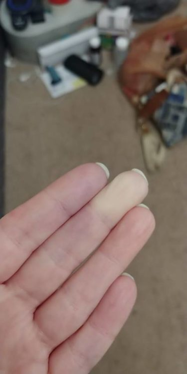 photo of a woman's fingertips with the middle finger completely white due to lack of circulation from raynauds