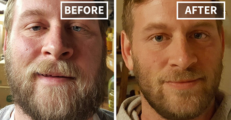 20 Before-And-After Pics Show What Happens When You Stop Drinking