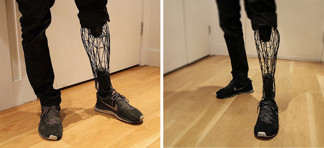 Look at how see-through prosthetics were made by using 3D printed Titanium