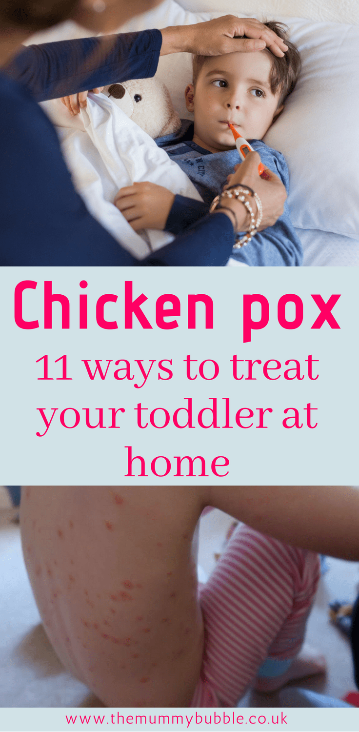 Treating chicken pox at home