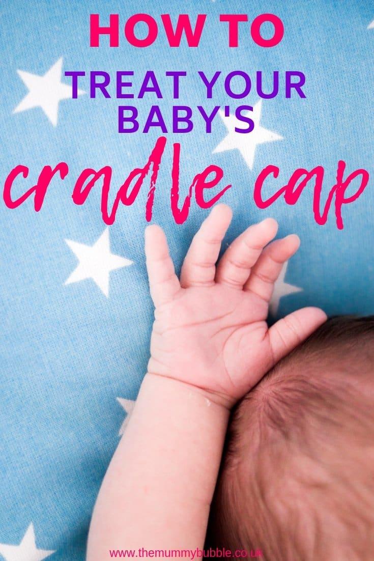 How to treat cradle cap in newborn babies