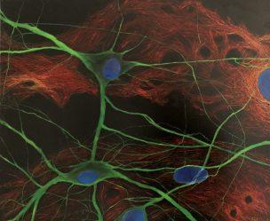 Neurons - Oil on canvas
