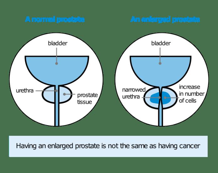 Enlarged Prostate Comparison