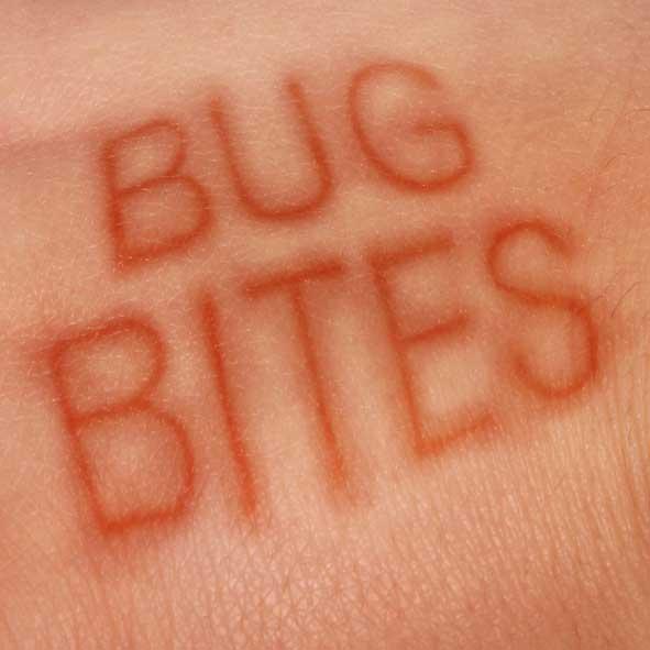 Skin Rash? Skin Problems or Bug Bites?