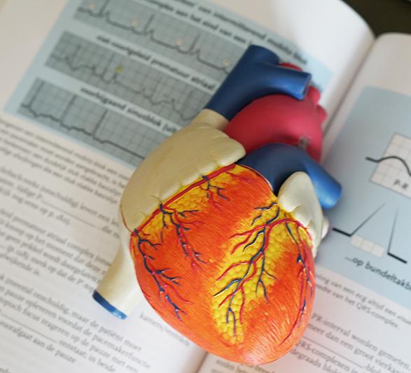 lactic acidosis heart attack the nhcaa