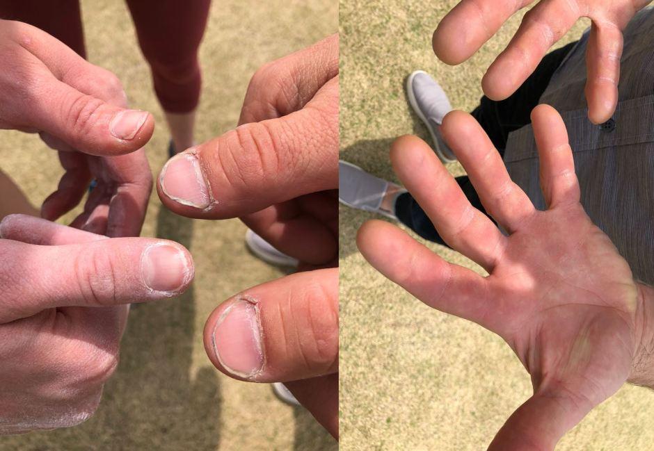 Josh Larsen's hands