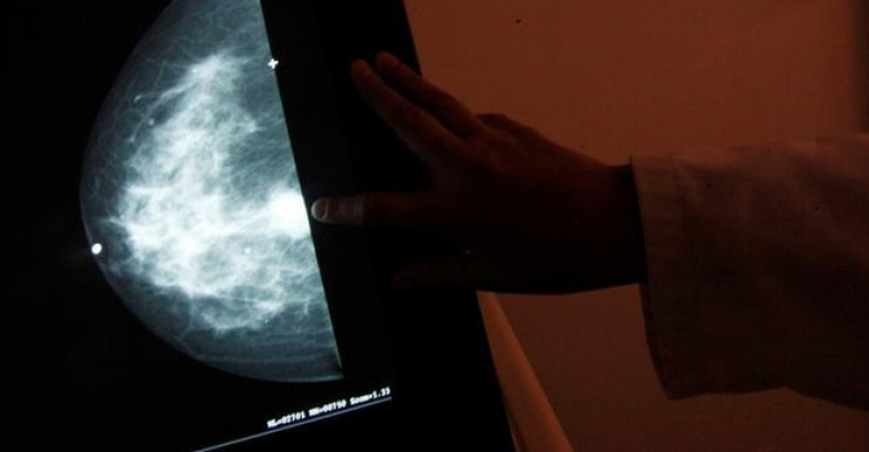 """FILE PHOTO: A monitor shows the image of a breast cancer at a centre run by the """"Reto"""" Group for Full Recovery of Breast Cancer in Mexico City"""
