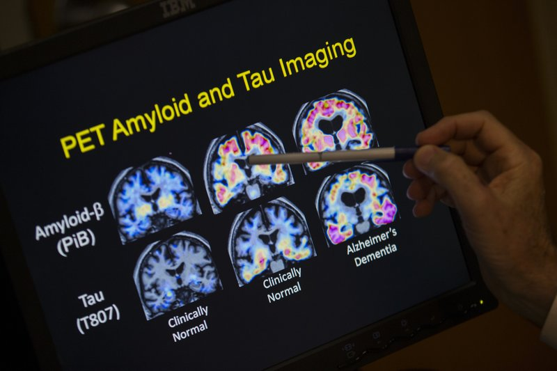 Senior's weakness for scams may be warning sign of dementia