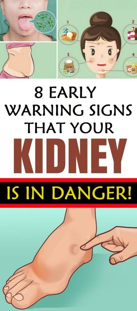 kidney damage signs