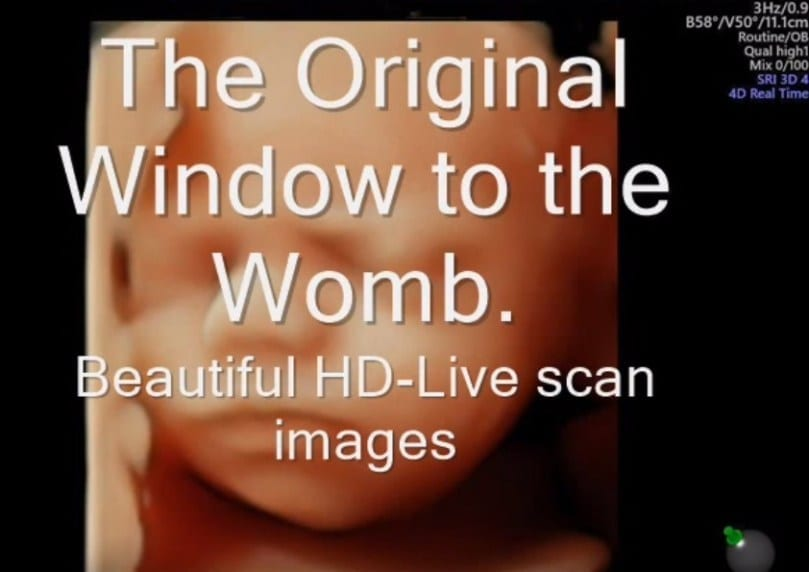 baby scaning videos blog